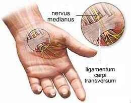 ízületi fájdalom a hüvelykujj alján