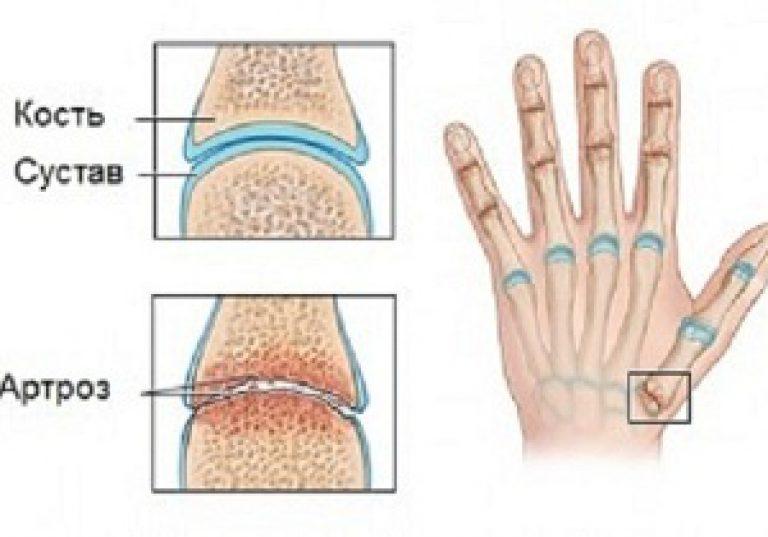 a kéz ízületeinek deformáló artrózisa akut arthrosis 3 fokos kezelés