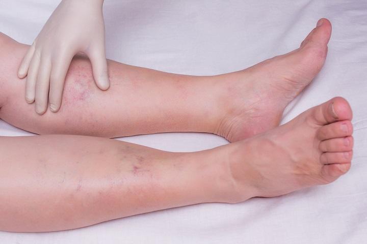 a láb ízületeinek gyulladása, ahogyan nevezik