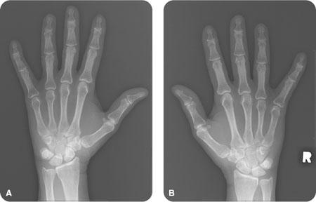 rheumatoid arthritis radiology stages