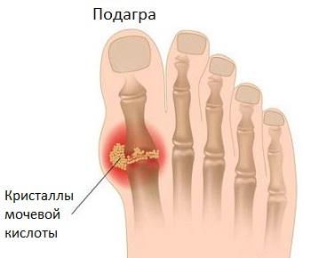 metatarsofalangealis ízületek fájdalma