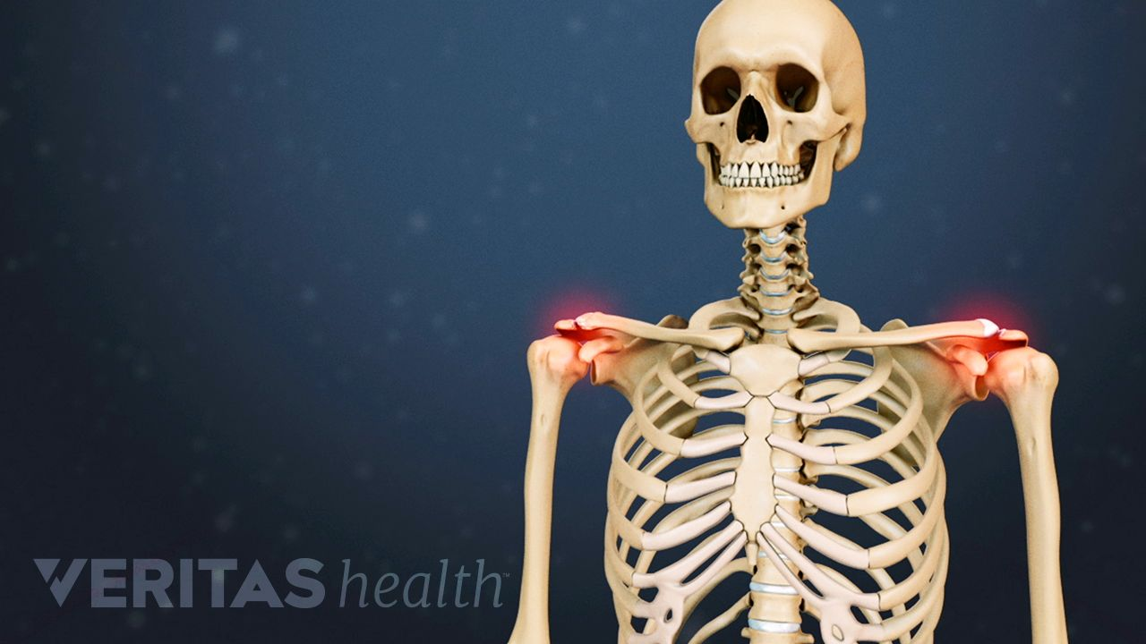 clavicularis arthritis artritisz lábujjak, mint kezelni