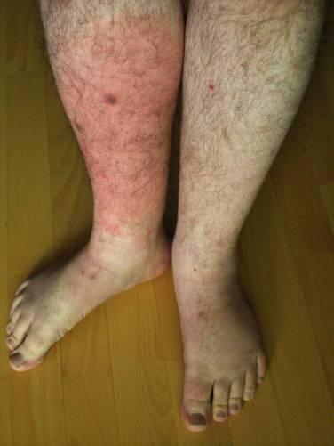 az ízületek streptococcus fertőzésének kezelése ízületi fájdalmak homeopátia