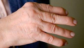 ha fájnak az ujjak ízületei