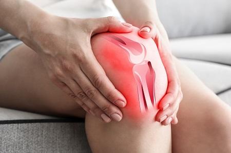 Chondroprotektorok a térd kenőcsének osteoarthritiszére
