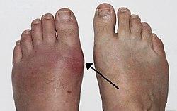 akut fájdalom a lábujj ízületében