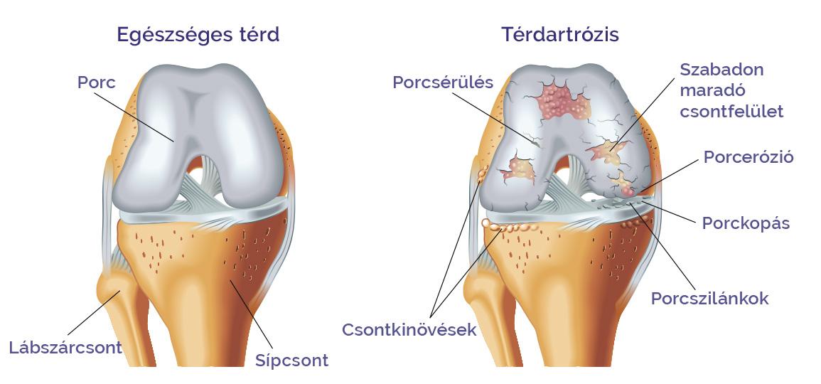 a térd progresszív artrózisa csontízületek kezelése