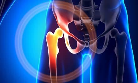 A csípőcsuklók ortézisének használatának típusai és jellemzői - Kár