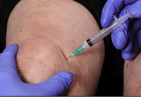 térdkopás kezelése injekcióval