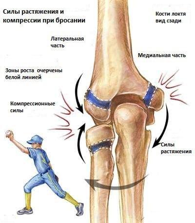 Csonttörések tünetei és kezelése - HáziPatika