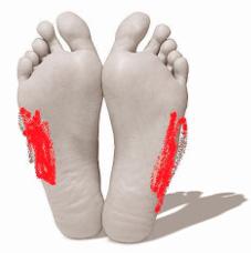 lábfájás ízület hogyan lehet enyhíteni a lábujjízület duzzanatát