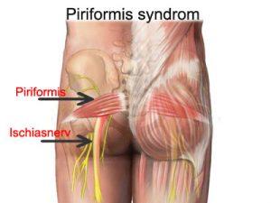 csípőfájdalom tünetek kezelése