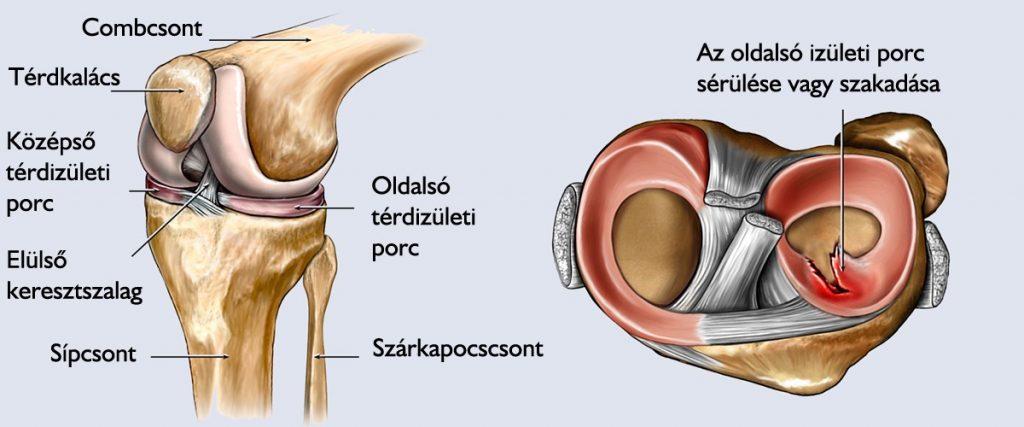 a combcsont patellarízület ízületi gyulladása a vállízület polyosteoarthrosis kezelése