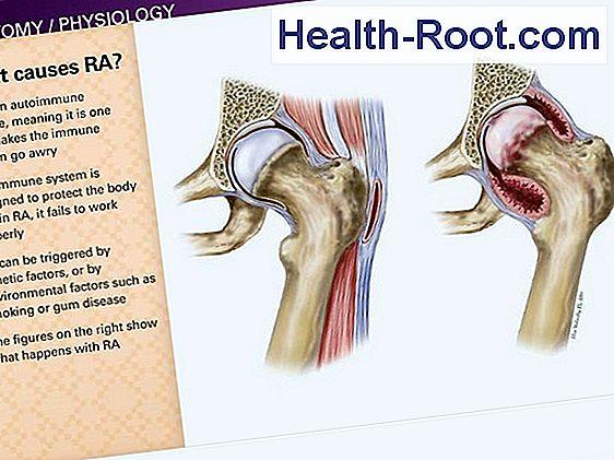 ízületi coxarthrosis tünetei és kezelése fájdalmat okoz a kéz ízületeiben