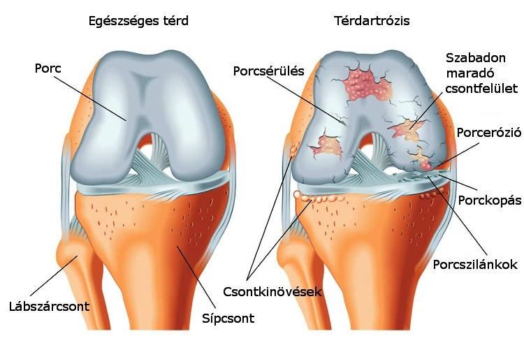 a térd szalagjai gyulladásának kezelése a kar ízületeinek ízületi gyulladása