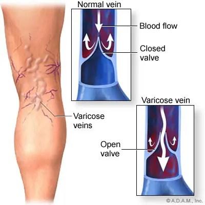 a térd oldalsó ínszalagjának sprain kezelése lábgyulladások ízületei