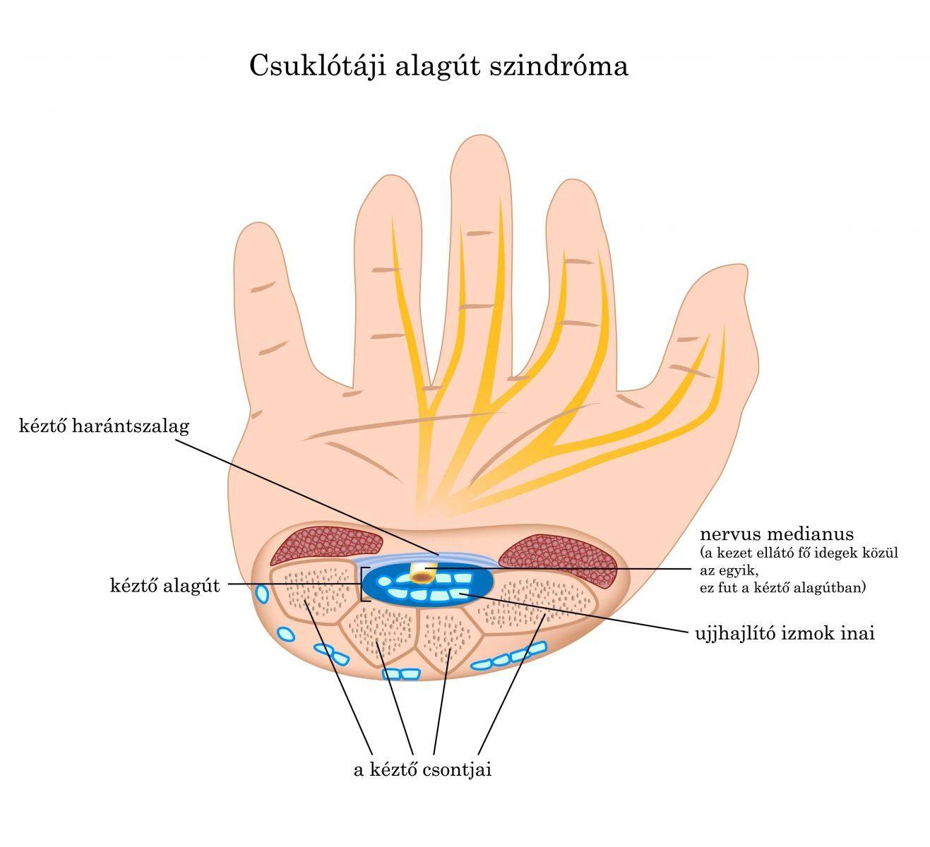 kenőcsök az ujjak artritiszére az egész test ízületei fájdalmat okoznak