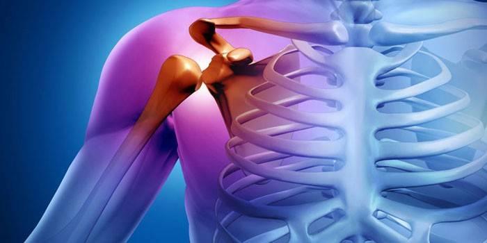 A térdízület-ligamentózis: mi az, annak okai és kezelése