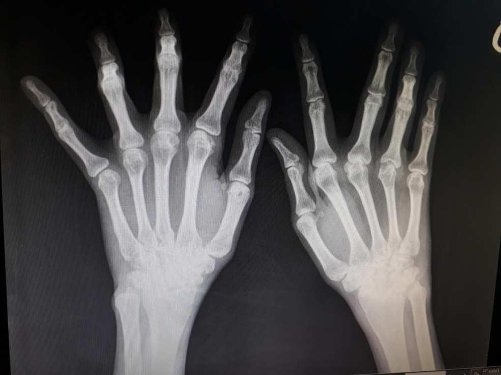 fájdalom mindkét kéz könyökízületeiben