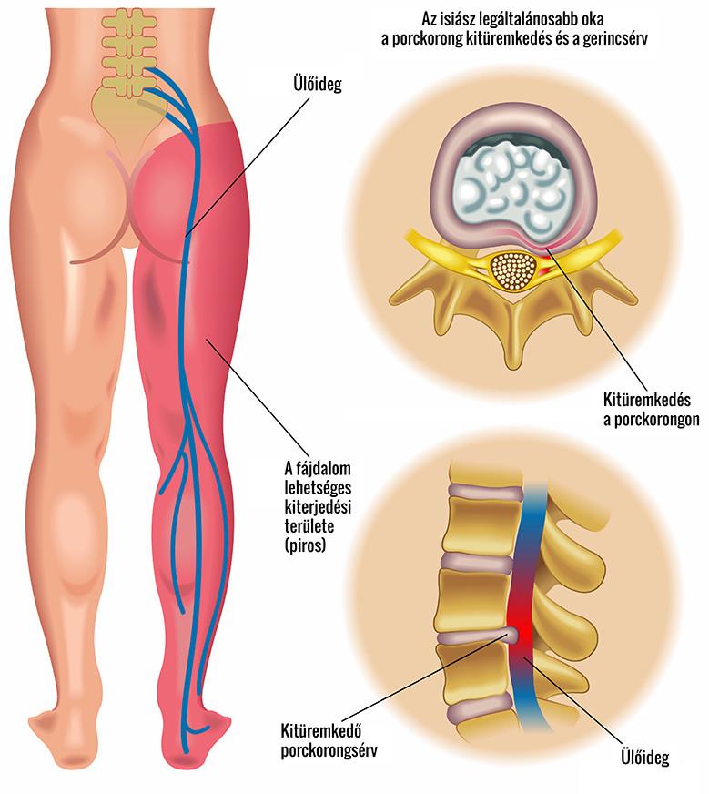 csípőfájdalom szorongatta ideget a könyökízület ízületi gyulladása okozza