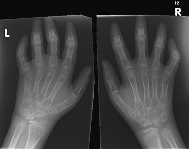 juvenile rheumatoid arthritis medscape kondroitin 80 glükózamintablettával