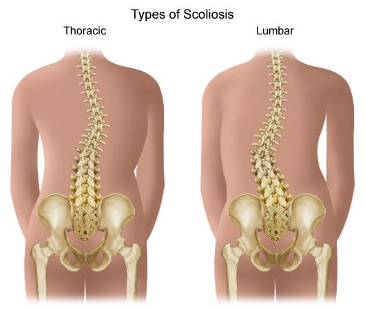 a bal térd artrózisa gyulladásgátló szer ízületi fájdalmak kezelésére
