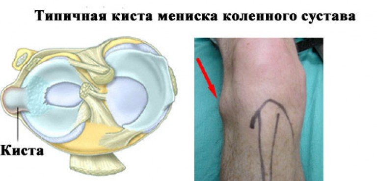 tompa fájdalom a vállízületben a jobb könyökízület fájdalma kezelést okoz