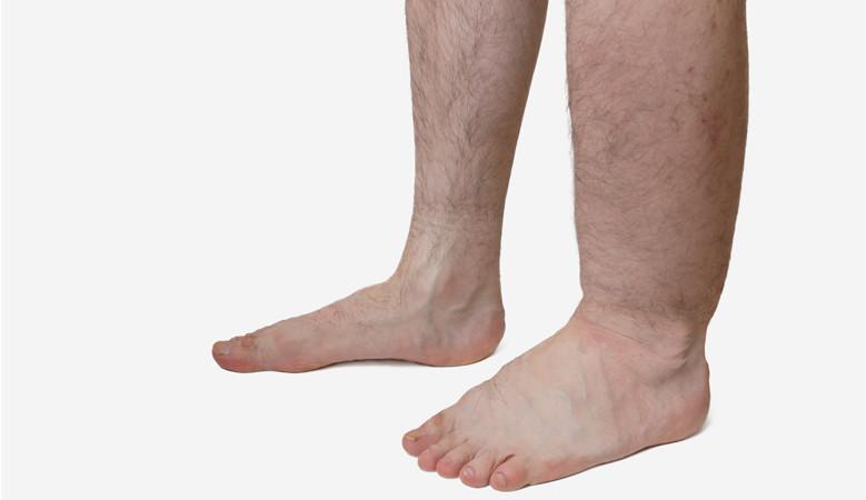 Nehézség a lábak ízületi fájdalmain. Állkapocs-ízületi fájdalom