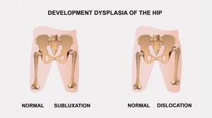 a csípőízület kezelésének szubluxálása kereszteződés kezelése