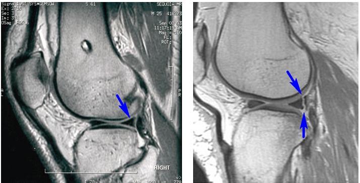 a jobb térdízületi szinovitisz medialis meniszkuszának károsodása
