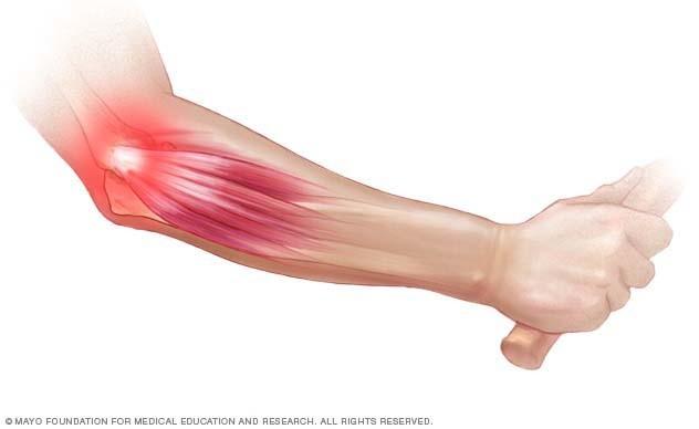 a könyökízület artrózisának kezelése 1 fokkal