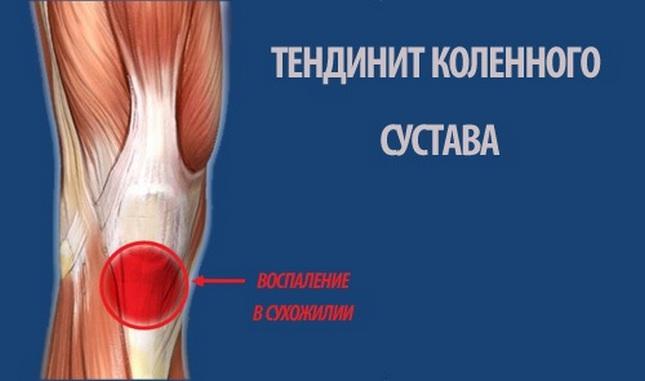 a térdízület kezelésének életkorral összefüggő ízületi gyulladása