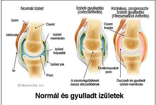 térdízületi készítmények ízületi gyógyszer halkivonat