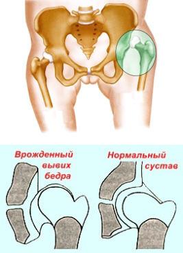 csípő diszlokáció, hogyan kell kezelni sokizületi gyulladás gyógyítása