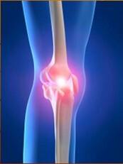fájdalom a lábak ízületeiben mozogva kenőcs enyhíti a térdízületek gyulladását