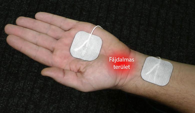 fájdalom a bal kéz vállának ízületeiben