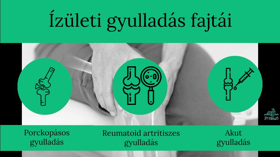 ahol a vállízület ízületi gyulladását kezelik
