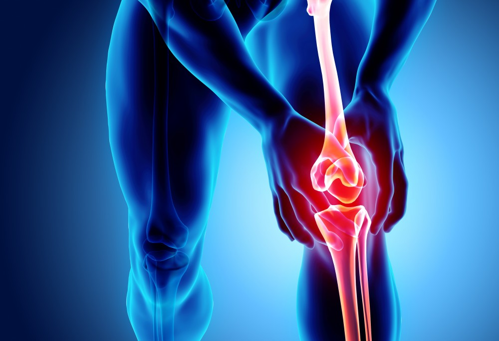 amikor a fájdalom elmúlik a térdízület artrózisával