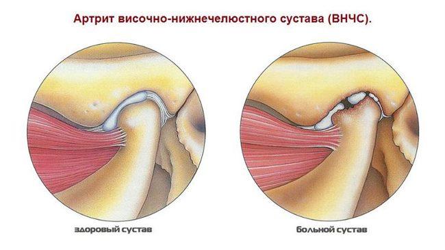 tabletták vagy injekciók ízületi fájdalmak kezelésére gyógyítja a lábak ízületeiben reumás ízületi gyulladást
