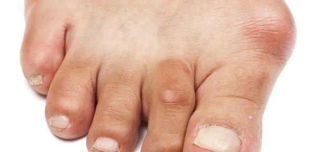 artrózis kezelése mézzel