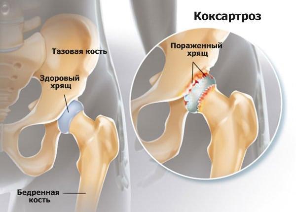 ízületi sprains milyen kenőcsök hogyan lehet kezelni a jobb térdízület deformáló artrózisát