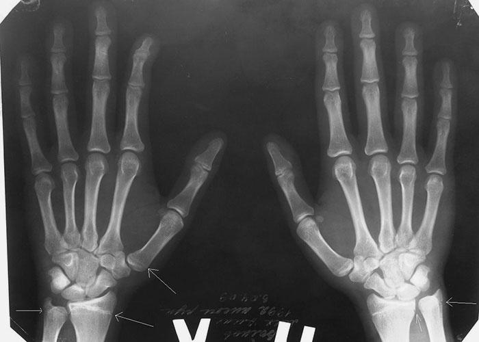 Egy nap a néma kór ellen – A csontritkulás világnapja