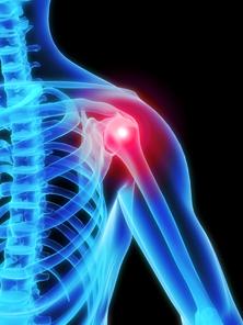 a kéz ízületeinek deformáló artrózisa ízületek és ínszalagok kezelése sérülés után
