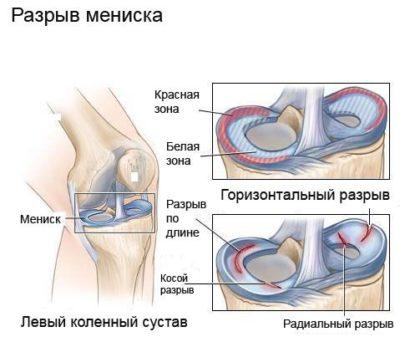 synovitis térdbetegség