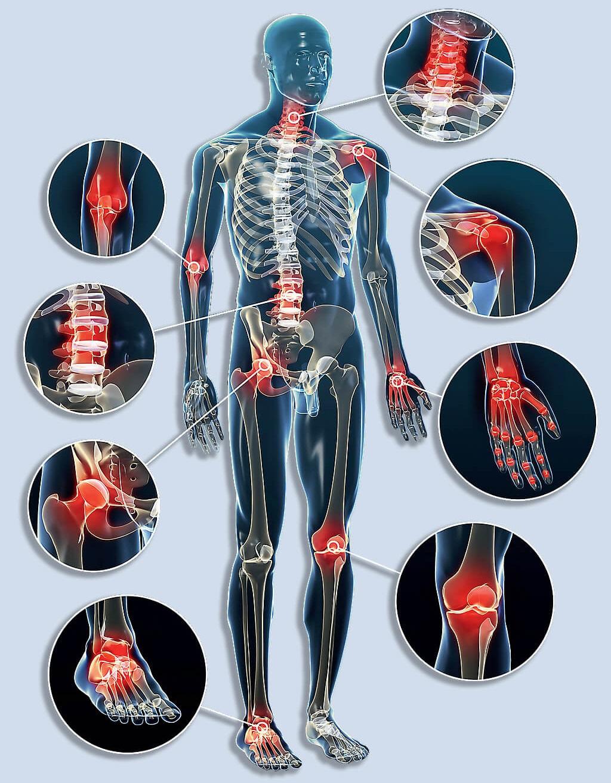 ropogás és ízületi fájdalom oszteokondrozissal