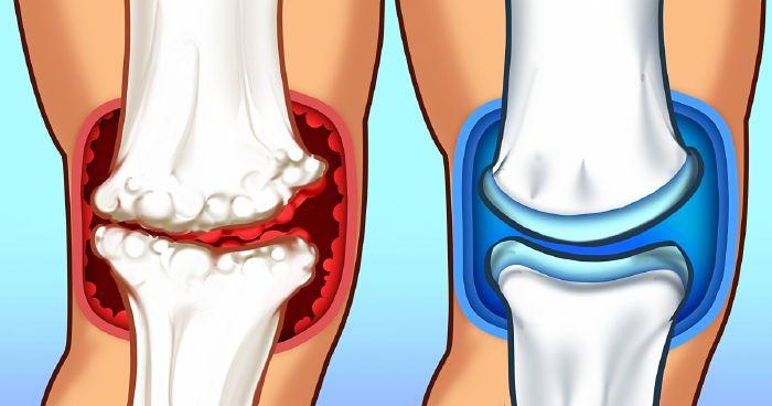 mit kezelnek a térdízületek fájdalmai kinek kell kezelni az ízületi gyulladást
