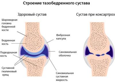 DOA csípőízület 1 fok: kezelés és megelőzés