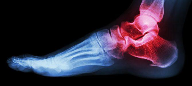 boka inhuvely gyulladas a lábízületek fájnak, hogyan kell kezelni