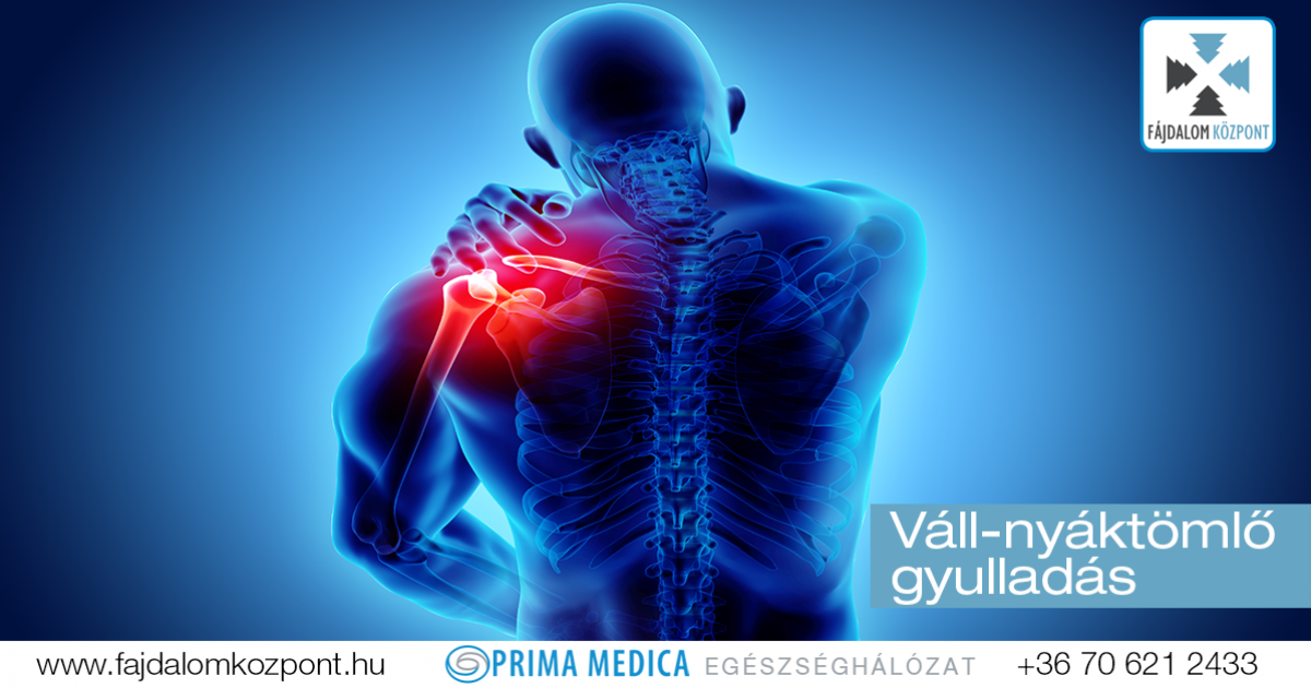 a nyaki ízületek gyulladásának tünetei fájdalom a karok felemelésekor a vállízületekben