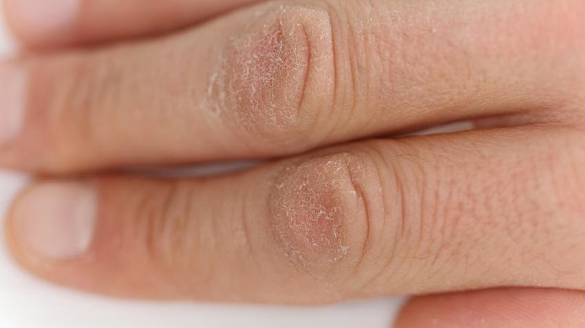 kenőcsök az ujjak artritiszére